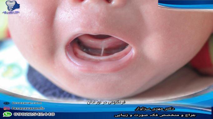 عمل فرنکتومی در نوزادان