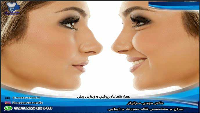 همزمان-پولیپ-و-زیبایی-بینی