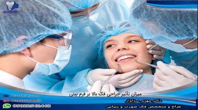 تاثیر-جراحی-فک-بالا-بر-فرم-بینی-به-چه-عواملی-بستگی
