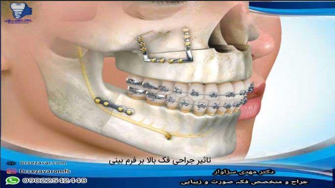 تاثیر-جراحی-فک-بالا-بر-فرم-بینی