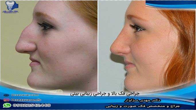 جراحی-فک-مقدم-است-یا-جراحی-بینی