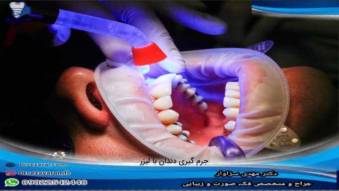 جرم-گیری-ایمپلنت-دندان-با-جراحی
