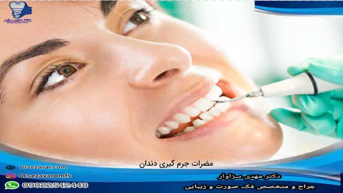 جرم-گیری-برای-دندانها-یا-ایمپلنتها-ضرر-دارد