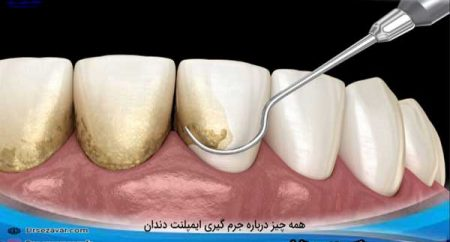 درباره-جرم-گیری-ایمپلنت-دندان