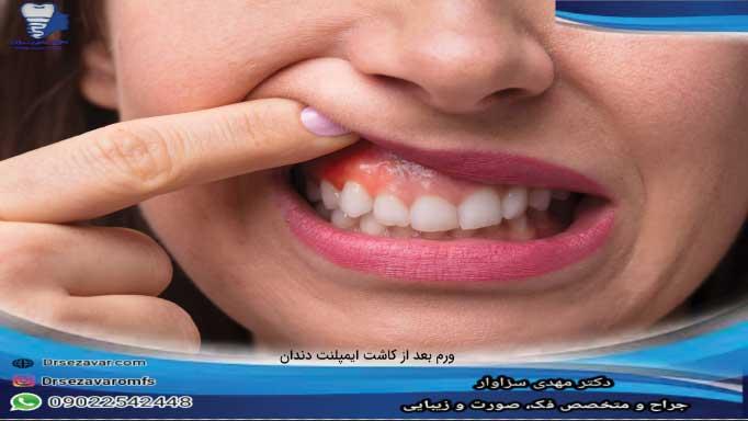 ورم دندان بعد از ایمپلنت