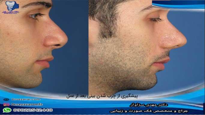 پیشگیری--از-چرب-شدن-بینی-بعد-از-عمل-رینوپلاستی