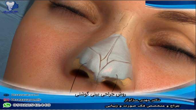روش-جراحی-بینی-گوشتی
