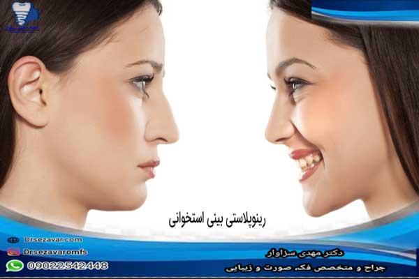 رینوپلاستی-بینی-استخوانی-و-مزیتهای-این-عمل
