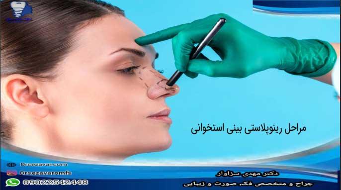 مراحل-رینوپلاستی-بینی-استخوانی