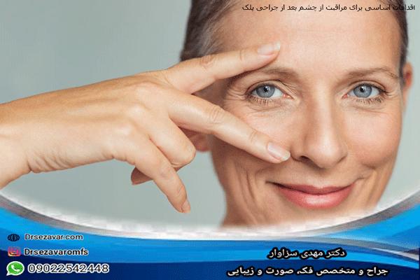 اقدامات-اساسی-برای-مراقبت-از-چشم-بعد-از-جراحی-پلک