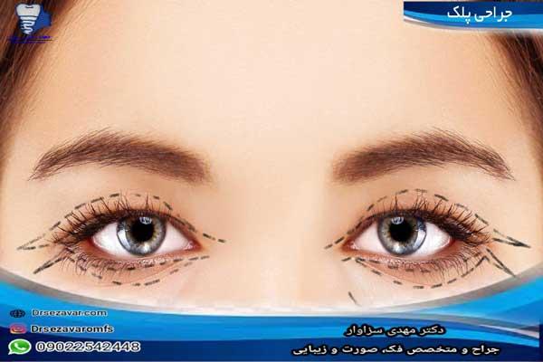 جراحی-زیبایی-پلک