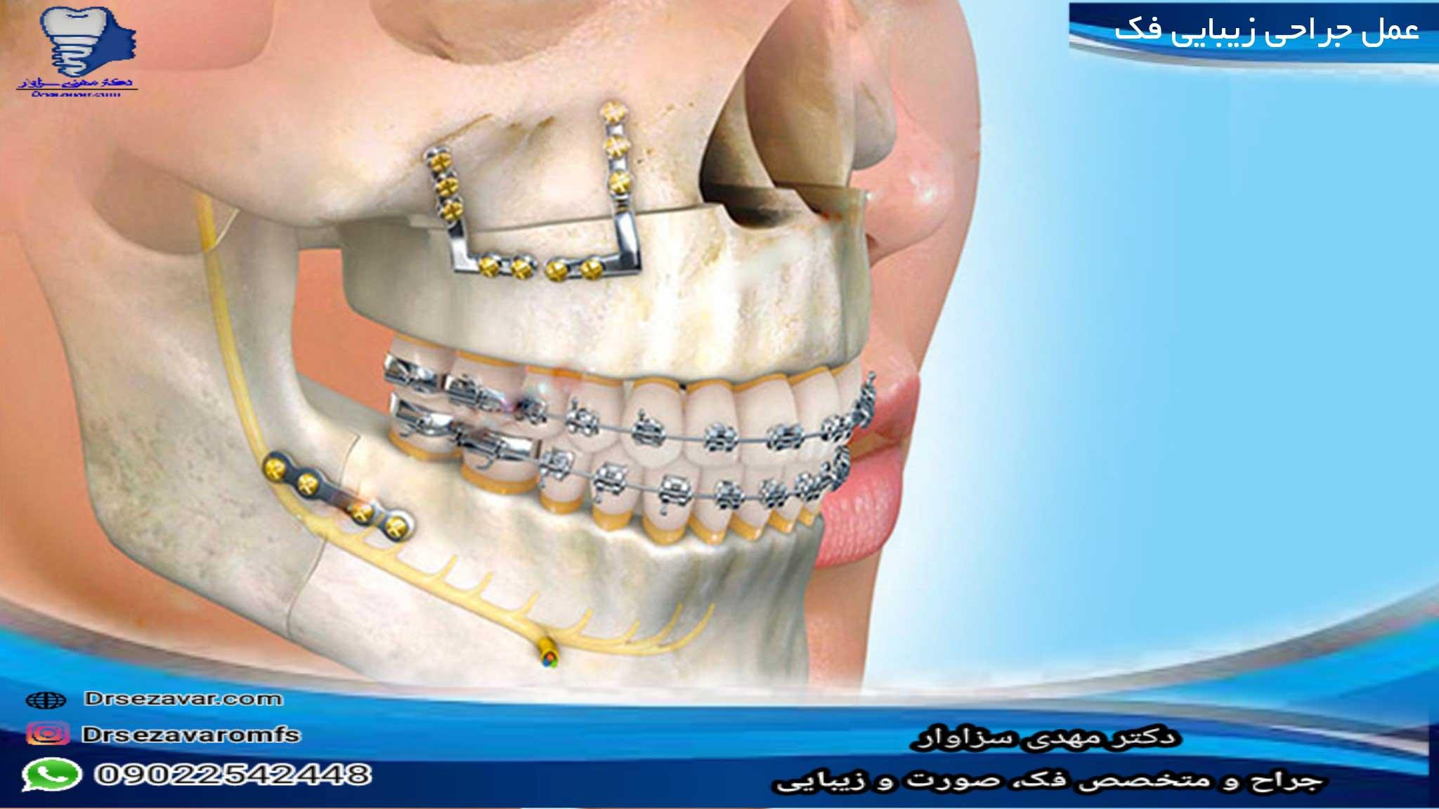 عمل-جراحی-زیبایی-فک