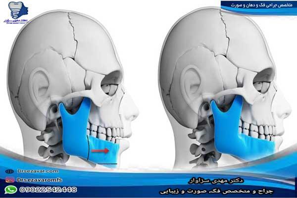 متخصص-جراحی-فک-ودهان-وصورت