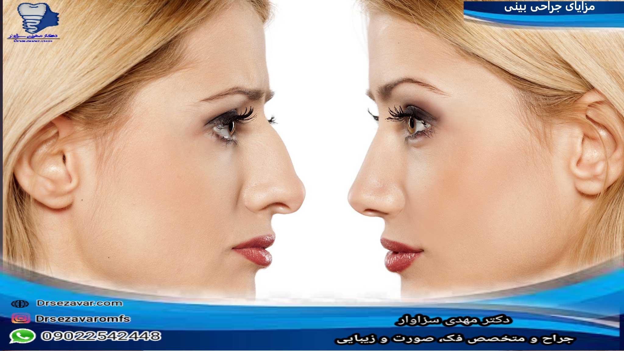 مزایای جراحی زیبایی بینی