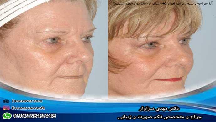 آیا جراحی بینی برای افراد 40 سال به بالا بی خطر است