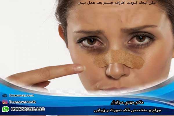 دلایل ایجاد کبودی اطراف چشم بعد عمل بینی و راه های درمان آن